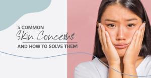 skin concerns, renaza, renaza blog, facial, skincare